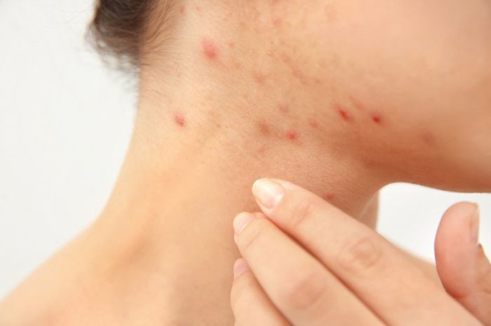 treatment for adult acne Alternative