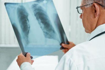 ВОЗ дала новое определение туберкулеза с лекарственной устойчивостью